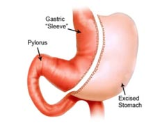 Sleeve Gastrectomy Complications